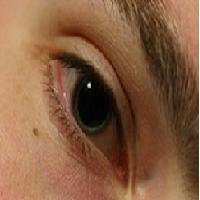 Cataract Course